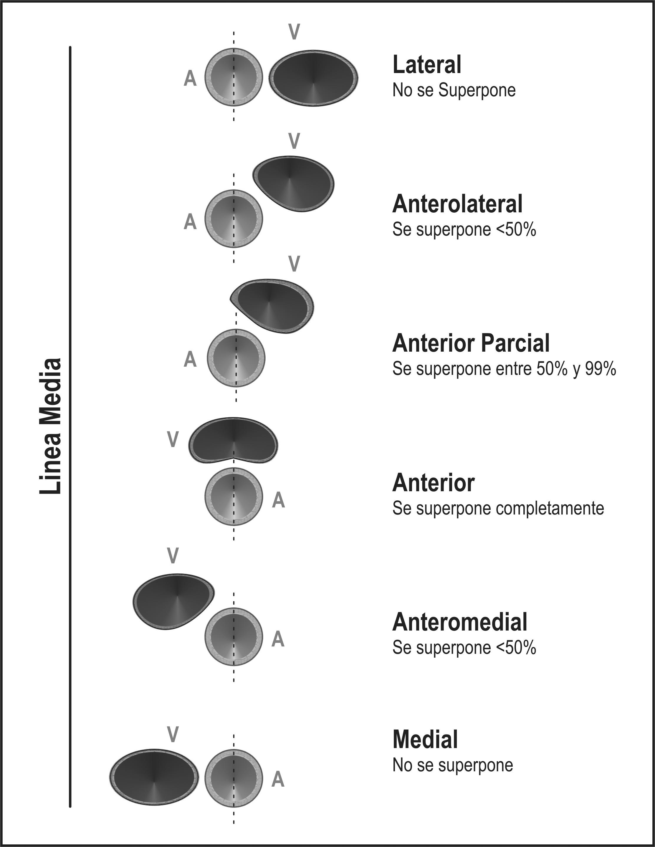 Variations in the anatomical relationship between the common carotid ...
