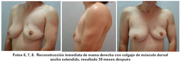 La operación de la desaparición los lipomas del pecho