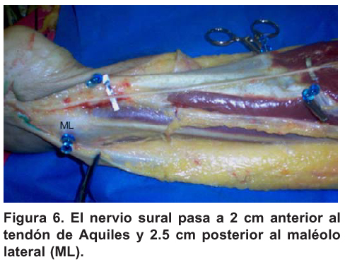 sSural nerve: anatomical study and clinical aspects. | Nieto ...