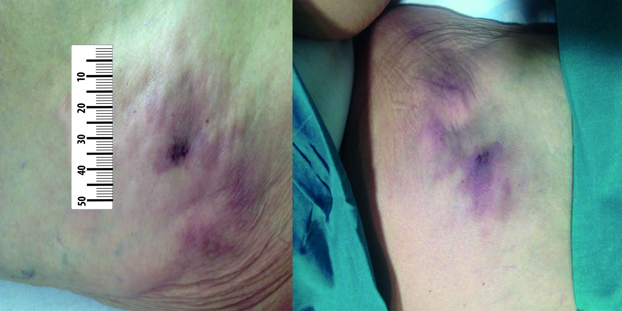 Subcutaneous, non-ulcerated and violaceous nodules on her left front and back thigh respectively, prior to the treatment.